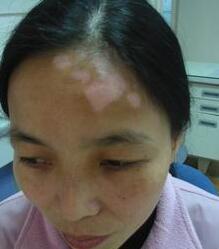 武汉白斑医院详解儿童白癜风都是什么样的症状呢