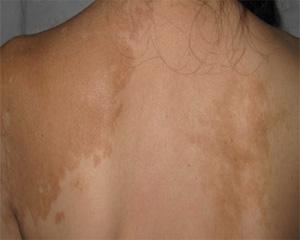 哪些因素导致夏季白癜风高发