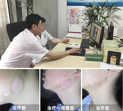 彩虹公益·秋季白癜风公益普查暨规范化诊疗