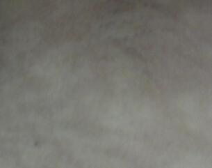 武汉治疗白癜风哪家口碑好?白癜风开始症状有哪些